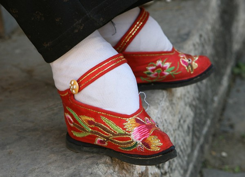 Chinese bound feet